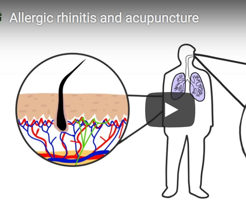 Acupuncture mechanisms for allergic rhinitis and hayfever